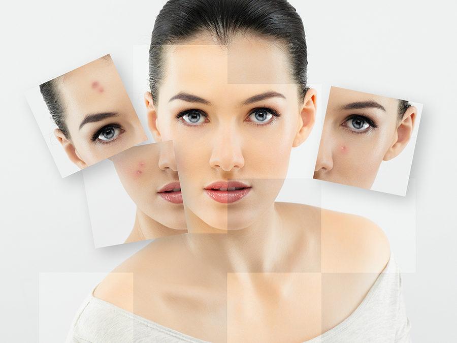 Combate el acné, no lo ocultes