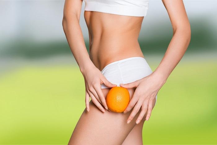 piel de naranja y celulitis