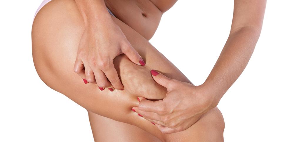 tratamientos para eliminar la grasa localizada
