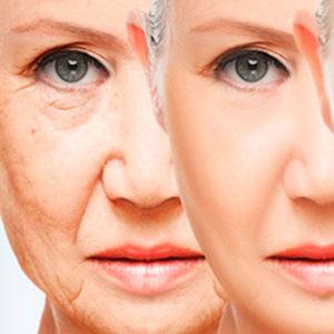 Socorro, me oxido. Así funciona el envejecimiento por oxidación.