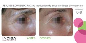indiba antes despues arrugas facial 02 El Tratamiento Indiba Facial Madrid