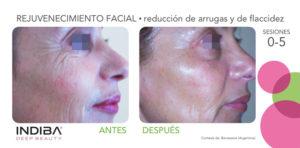 indiba antes despues arrugas facial El Tratamiento Indiba Facial Madrid
