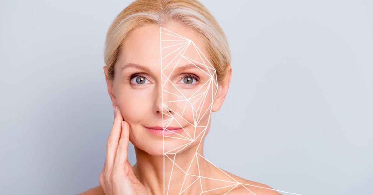 La estética te ayuda a reducir las líneas de expresión.