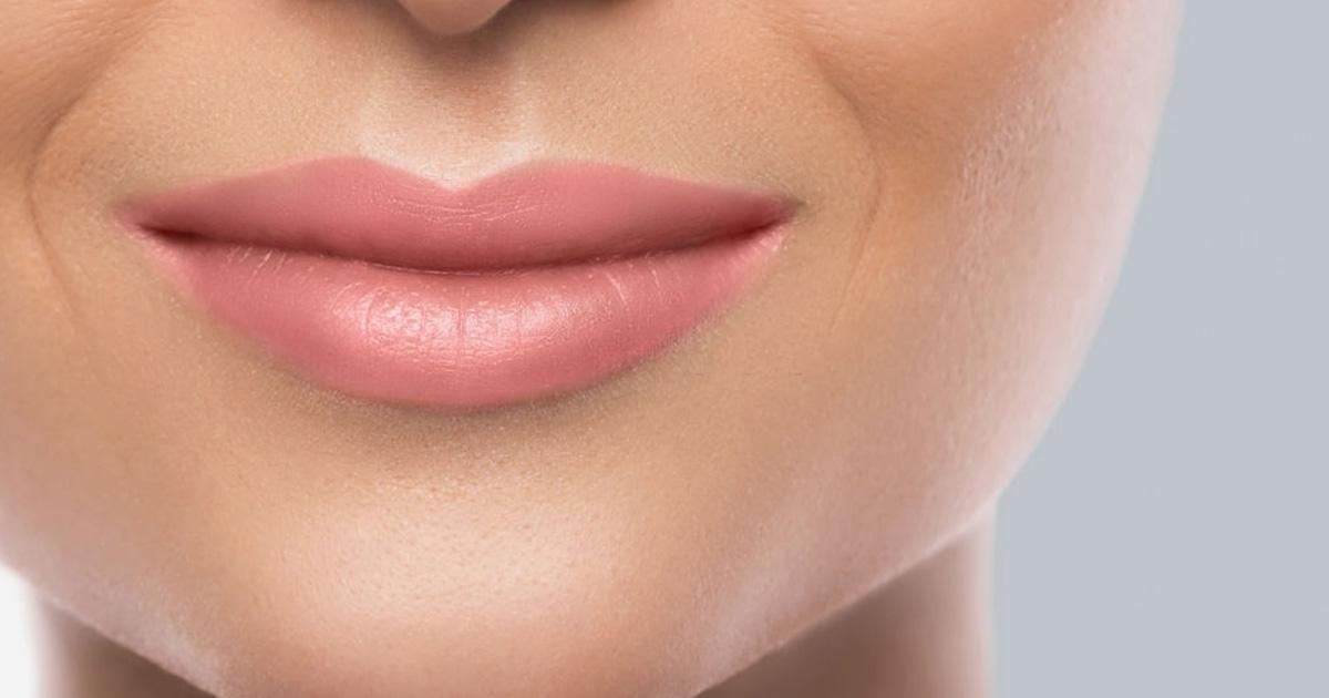 marcas y arrugas de expresión 2