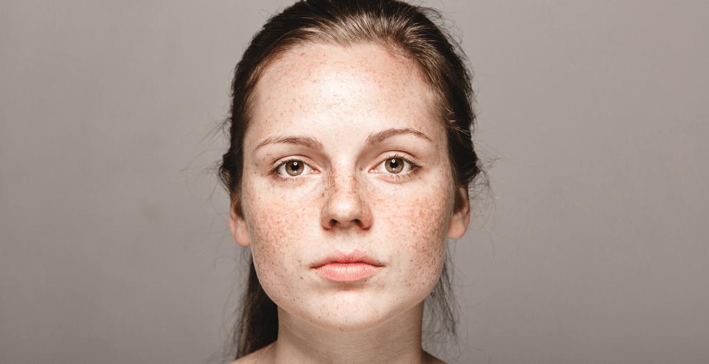 Manchas faciales y luminosidad - BIOLOGIQUE LUZ Y MANCHAS